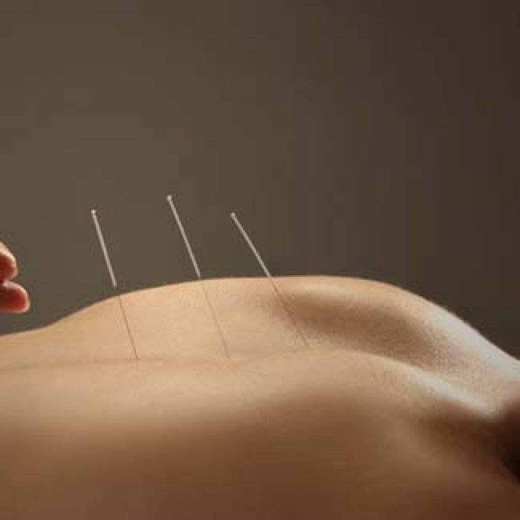 acupunture